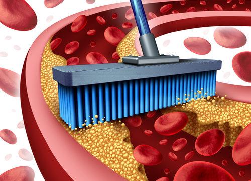 Hypercholesterolémia, hyperlipidémia, cholesterol, tuk, triglyceridy, tlak krvi, infarkt