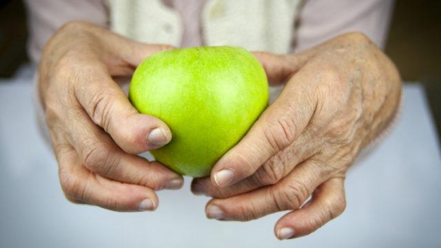 Reumatoidná artritída, autoimunitné zápalové ochorenie, kĺby, reuma
