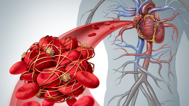 Trombóza, tromboflebitída, infarkt, krvná zrazenina, krvné doštičky