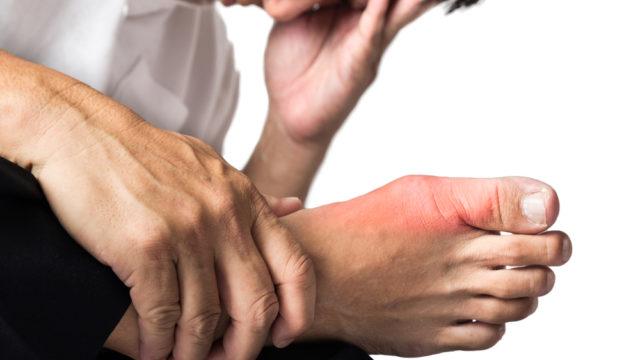 Dnavá artritída, dna, reuma, kĺby, zápal, kyselina močová, puríny, nízkopurínová diéta