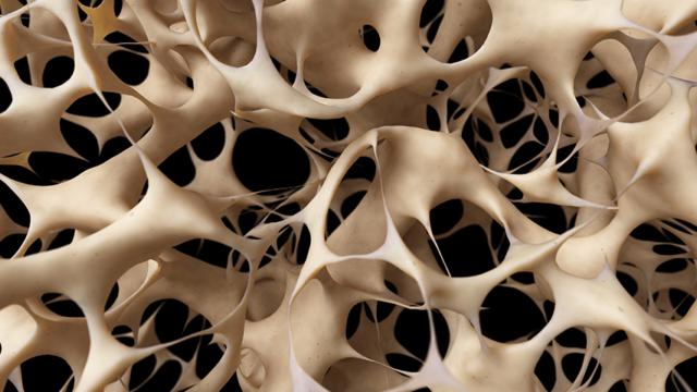 Osteoporóza, kosti, vápnik, rednutie kostnej hmoty, zlomeniny, menopauza