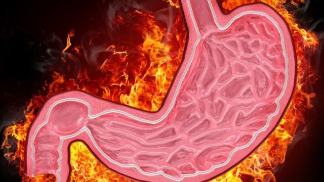 Gastritída chronická, žalúdok, zápal sliznice,