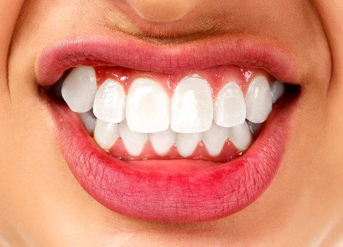 bruxizmus, zuby, škrípanie, chrápanie, noc, ďasná, zubný kaz, sladkosti,
